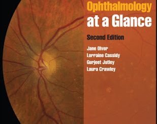 Ophthalmology Archives Page 2 Of 2 Free Medical Books border=
