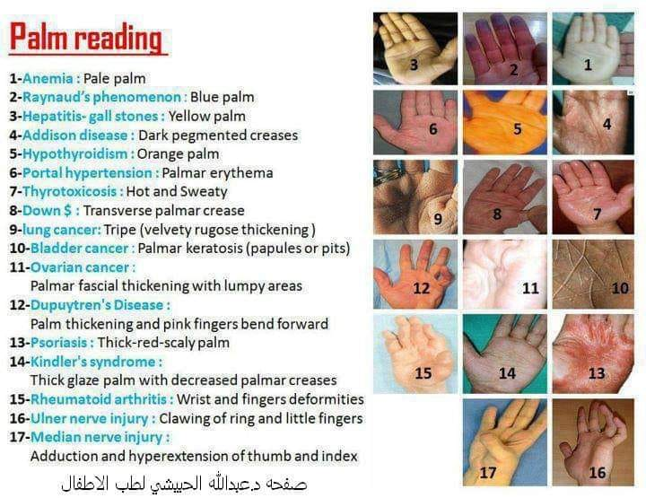 Palm Reading Sings of Disease on Your Hands