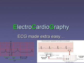 ElectroCardioGraphy (ECG) made extra easy