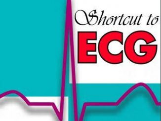 Shortcut to ECG First Edition PDF