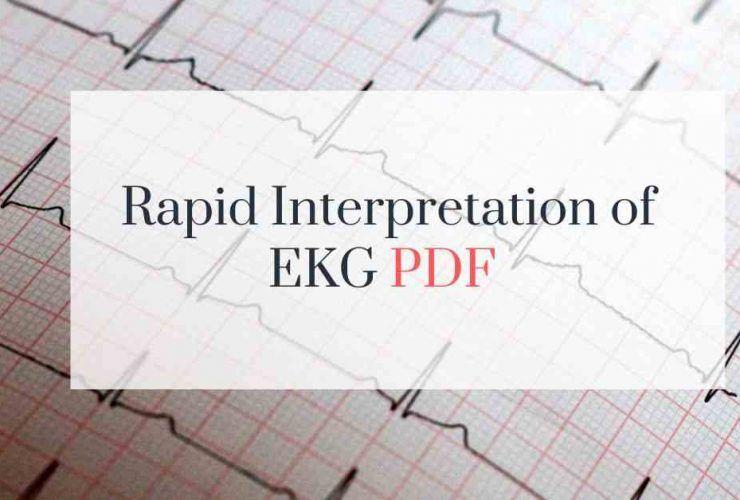 Rapid Interpretation EKG free